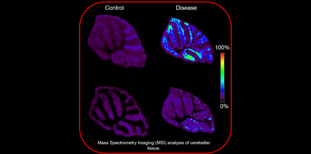 MSI image of lipids in cerebellar tissue measured in Dr. Cologna's Lab