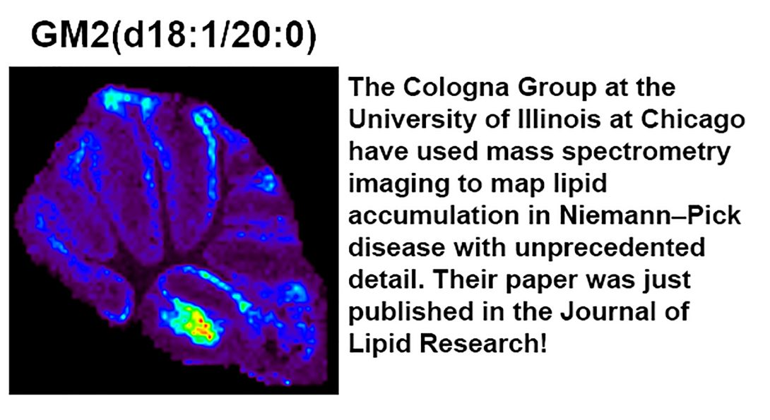 The Cologna group has created visual maps of gangliosides in mouse brain tissue.